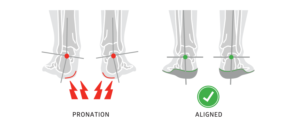 Pronation solved by insoles.