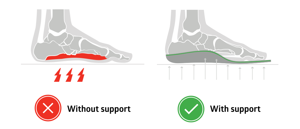 Orthotic insole arch support