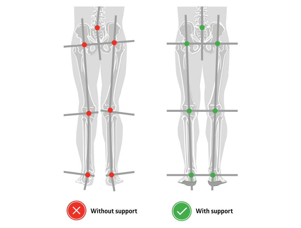 Insoles for neutral alignment