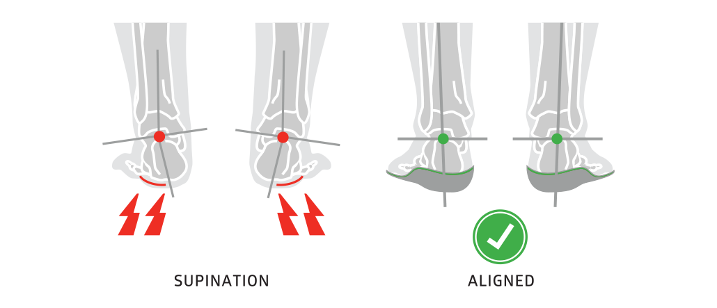 Insoles solve supination