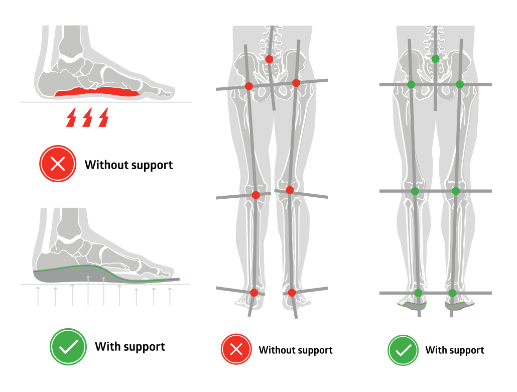 Arch support and neutral alignment