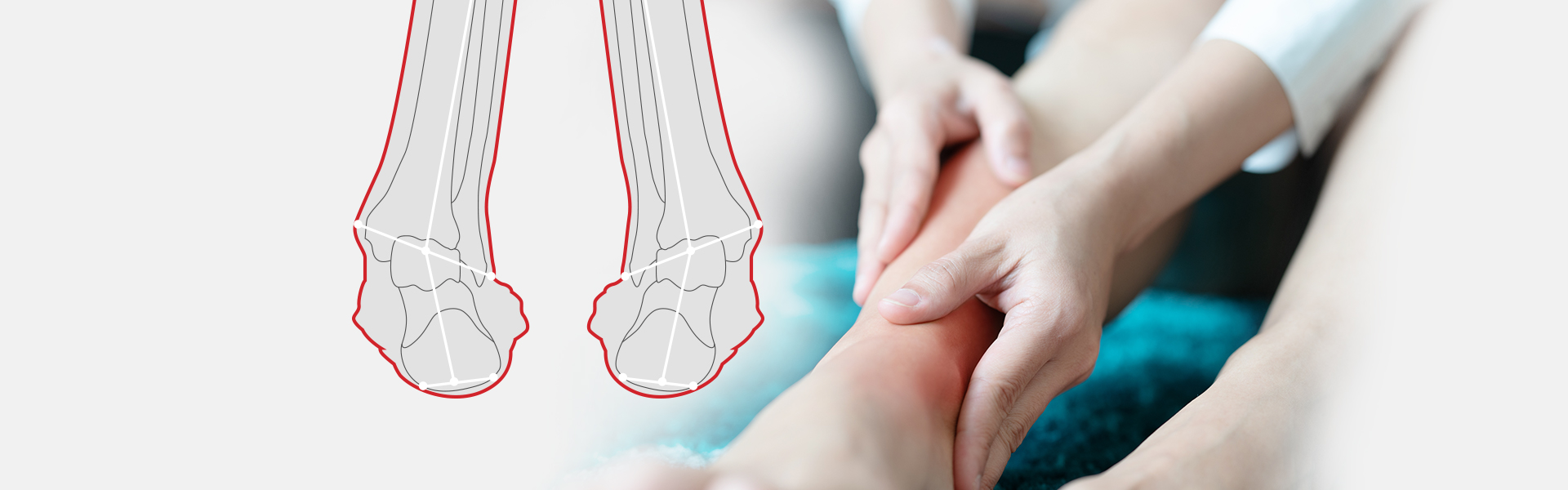 Supination Sole Solution