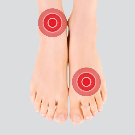 0783628b6179 Supination or underpronation - Orthopedic insoles Footbed